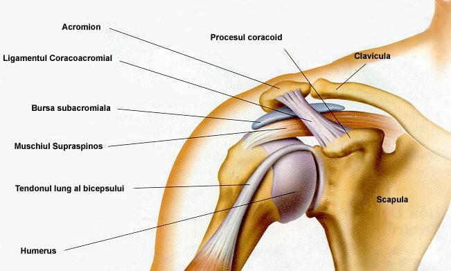 proteza articulației șoldului