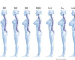 Read more about the article Marirea sanilor și influența acesteia asupra coloanei vertebrale