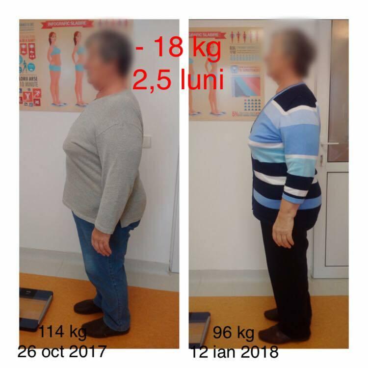 chiromedica-nutritie-cluj-dieta
