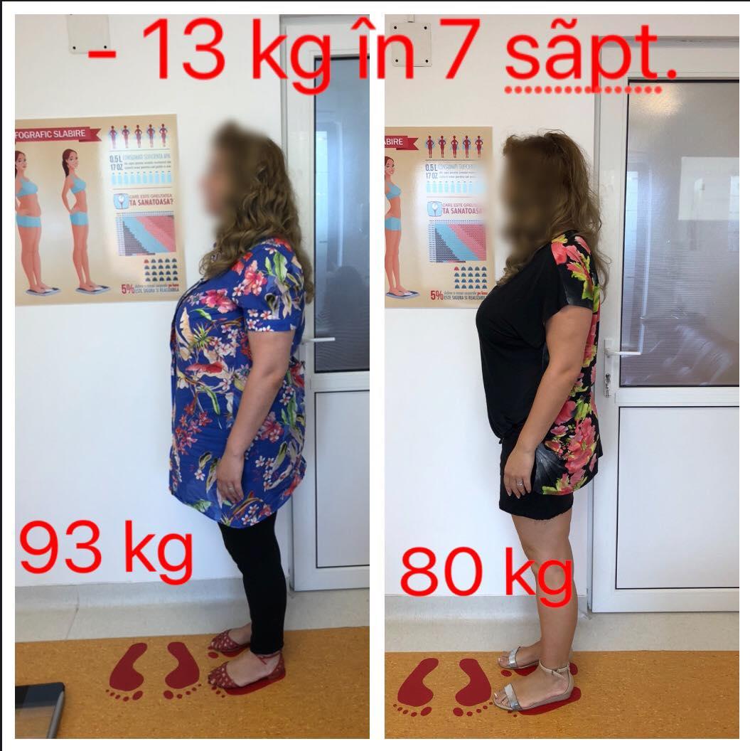 rezultate nutritie chiromedica cluj 1