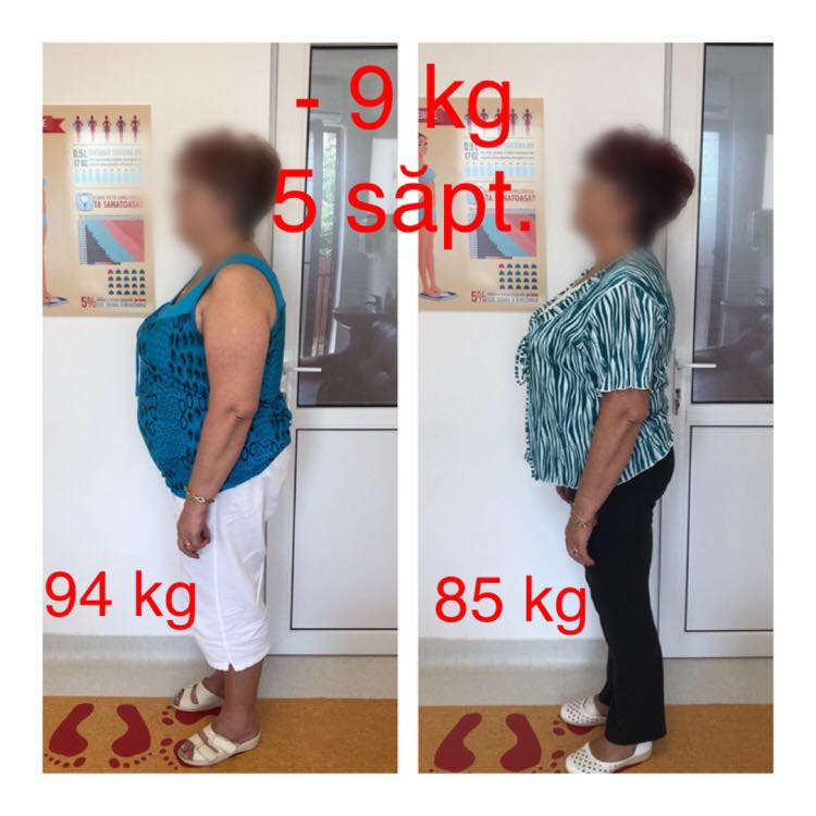 rezultate nutritie cluj chiromedica 3