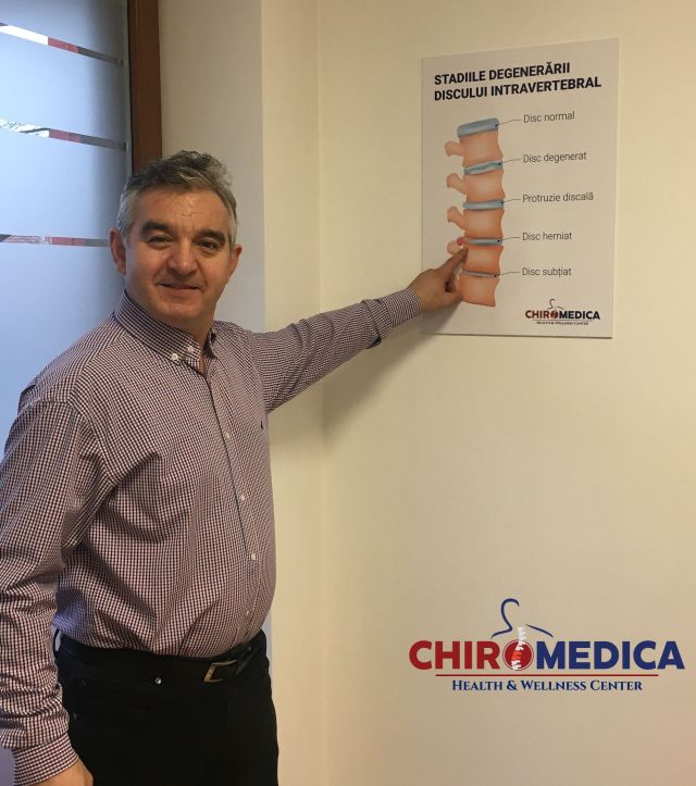 tratament hernie de disc chiromedica cluj 1
