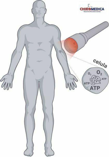 safe laser chiromedica cluj