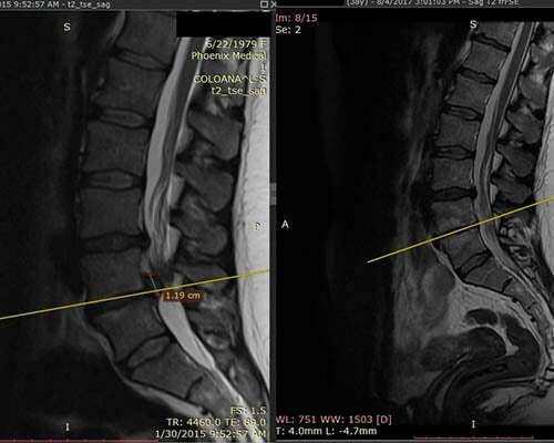 Tratament chiropractic hernie de disc – rezultate