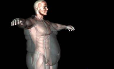 tratament obezitate 1