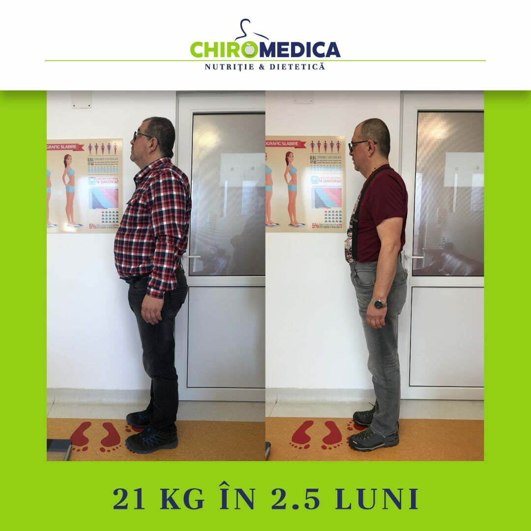 chiromedica - B_A - video_1 - lateral