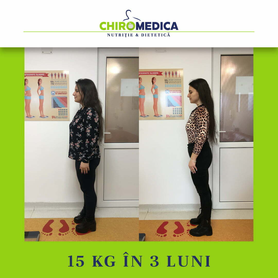chiromedica - B_A - video_adina dumitras - lateral