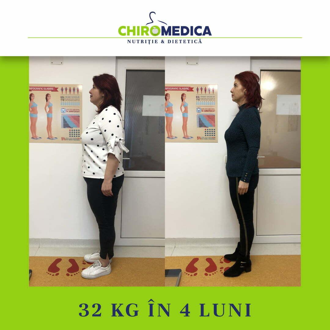 chiromedica - B_A - video_cris goga - lateral