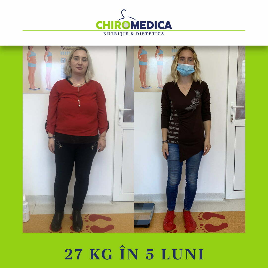 chiromedica - B_A - video_dragan ioana - fata
