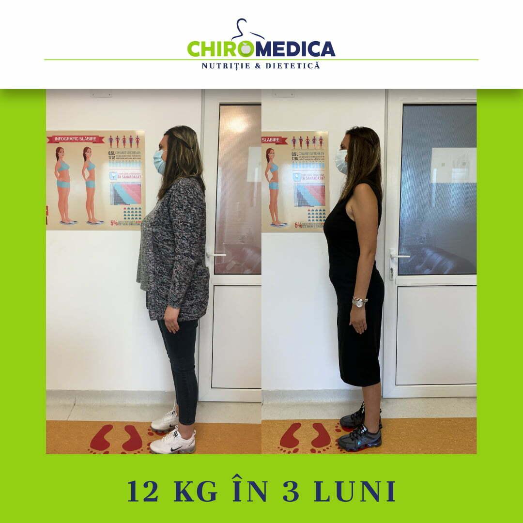 chiromedica - B_A - video_florina f - lateral