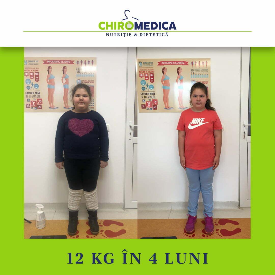 chiromedica - B_A - video_hoka iza - fata