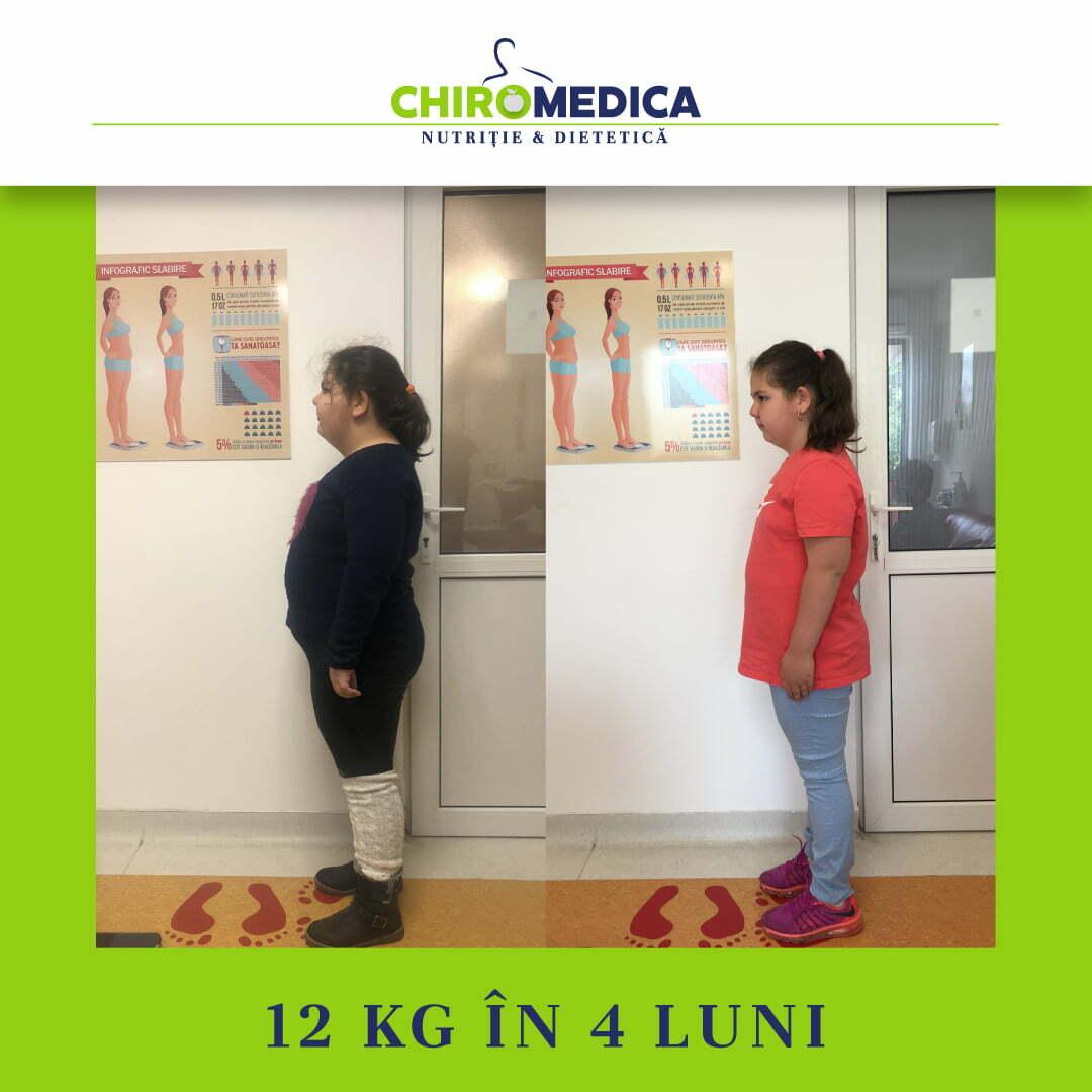 chiromedica - B_A - video_hoka iza - lateral