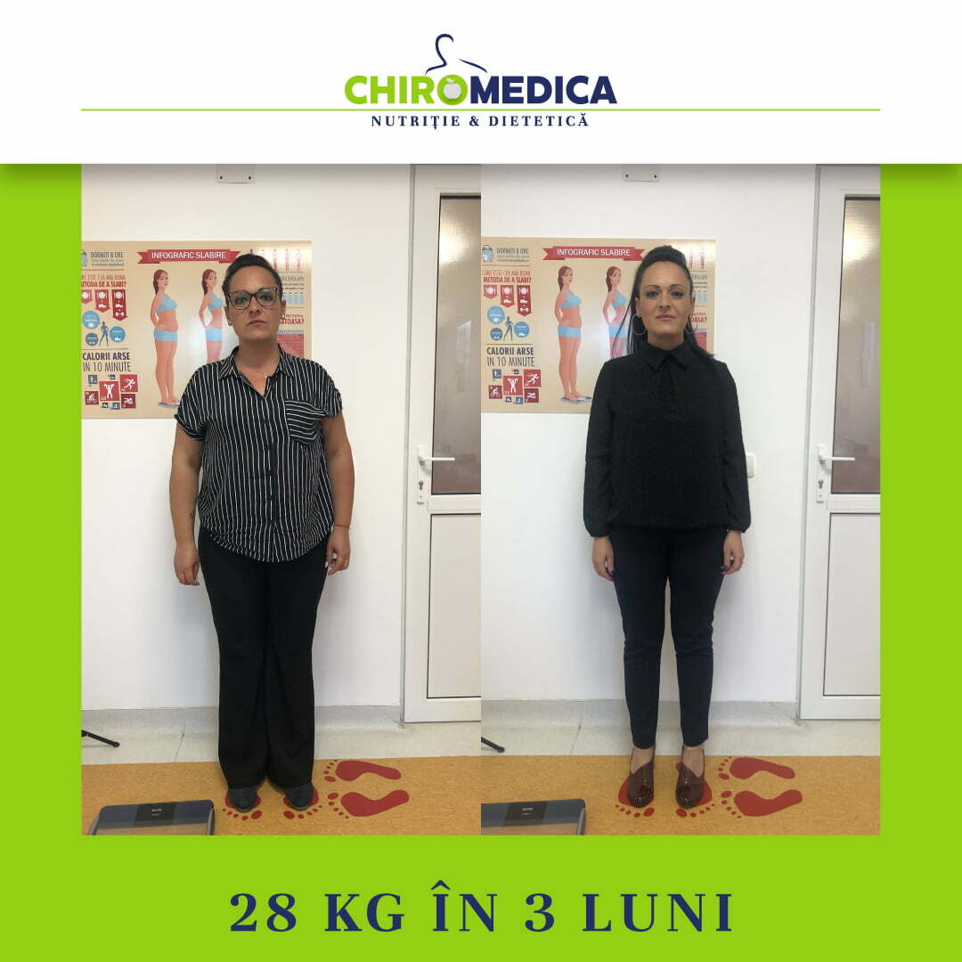 chiromedica - B_A - video_muresan raluca - fata