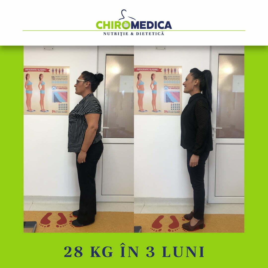 chiromedica - B_A - video_muresan raluca - lateral