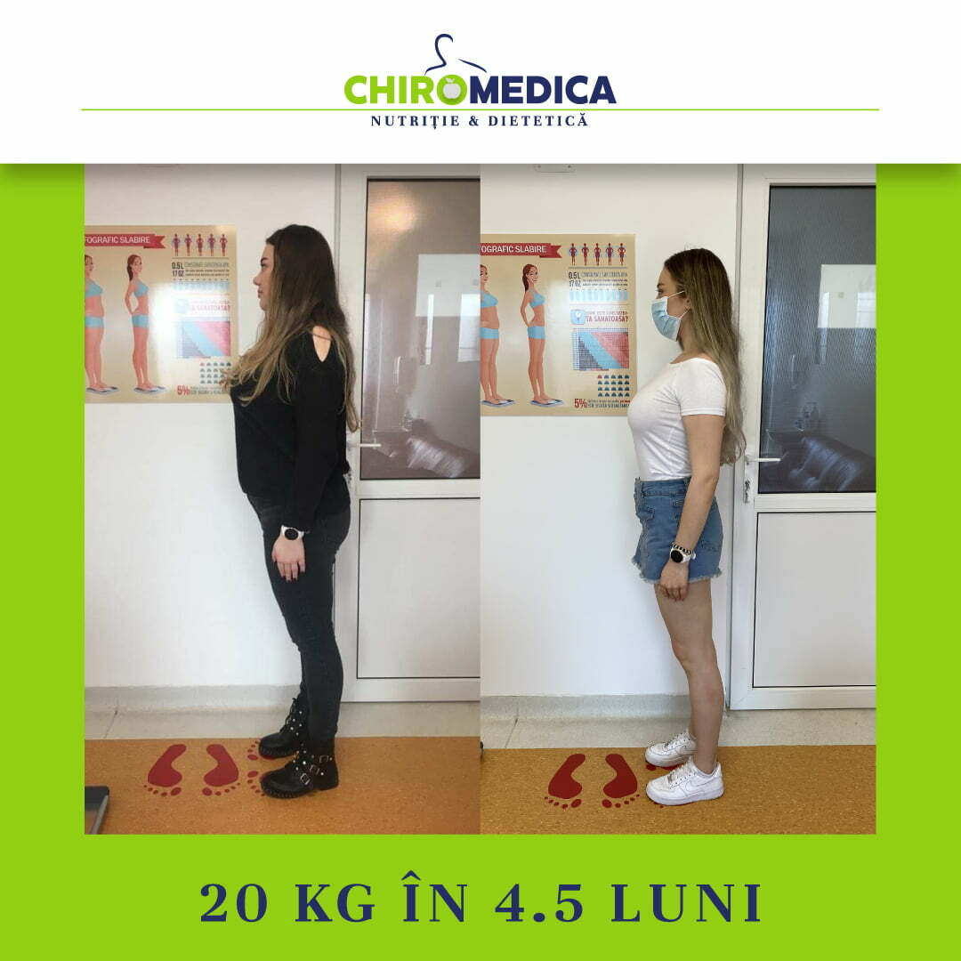 chiromedica - B_A - video_pap bia - lateral