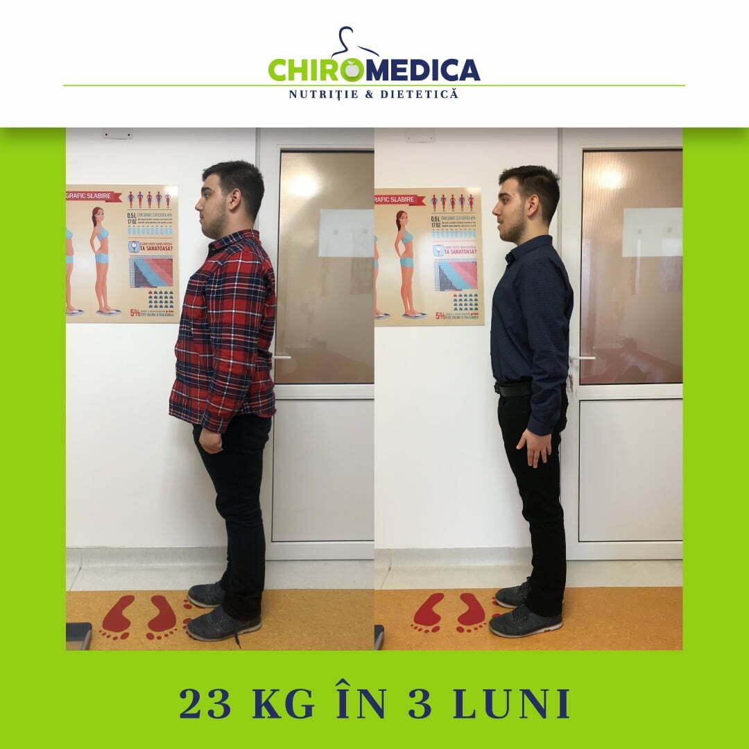 chiromedica - B_A - video_paul h - lateral