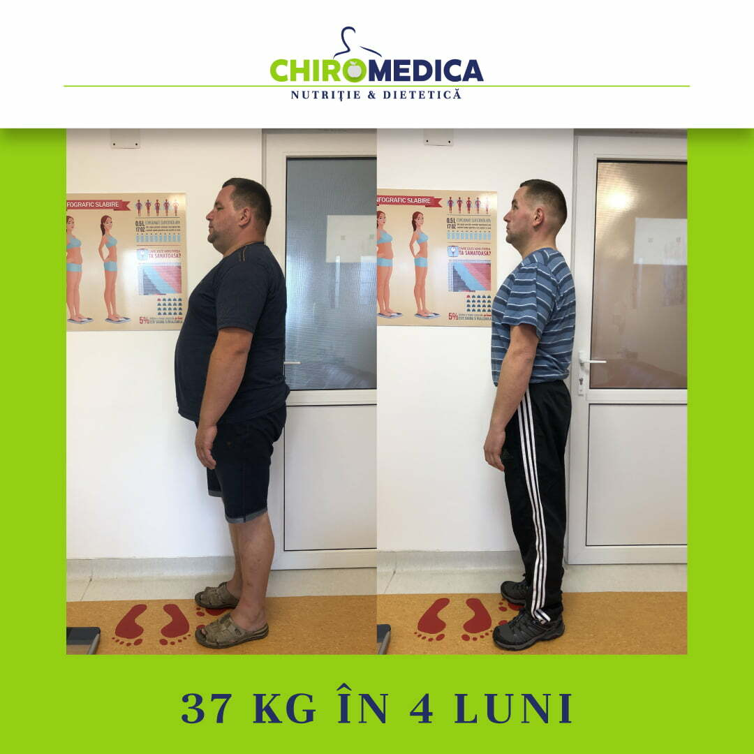chiromedica - B_A - video_raiu augustin - lateral