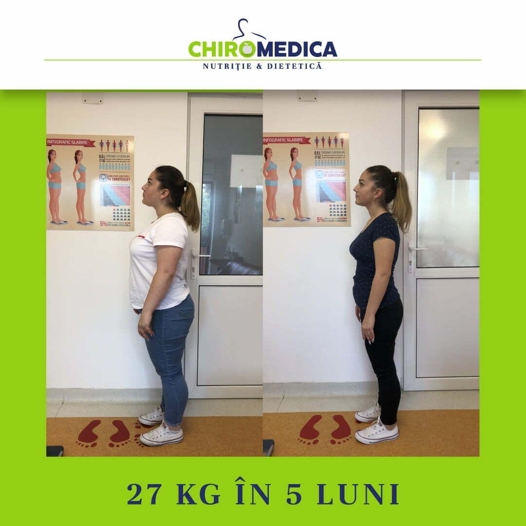 chiromedica - B_A - video_rosca natalia - lateral