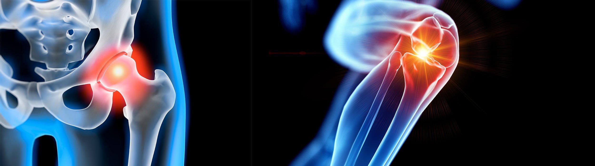 artroza kinetoterapie chiromedica health center desktop