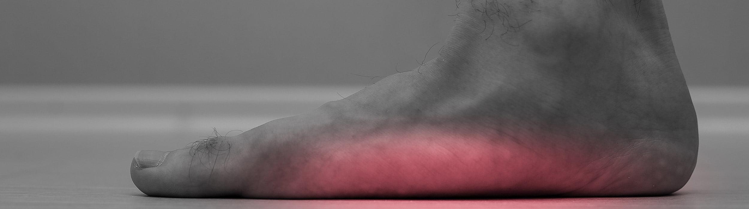 picior plat kinetoterapie chiromedica health center desktop