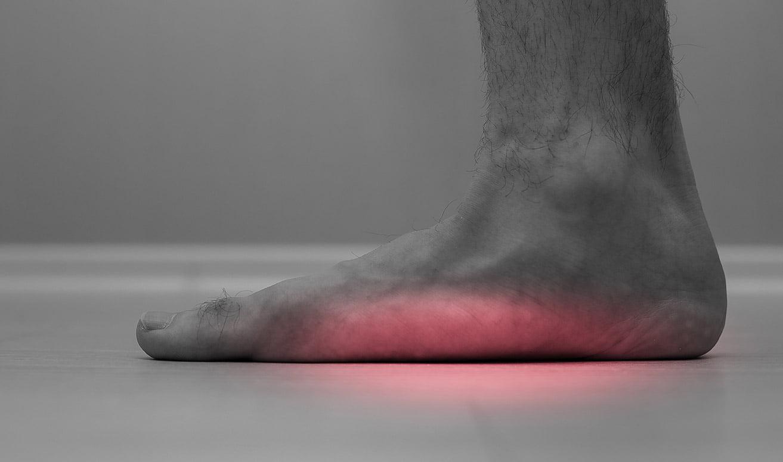 picior plat kinetoterapie chiromedica health center mobile